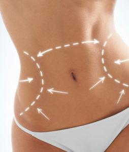 Abdominoplatika