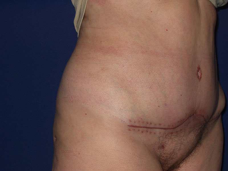 Abdominoplastika – Pacijent 2