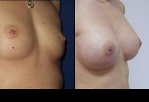 Pre i posle galerija: Uvećanje grudi