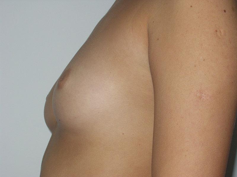 Uvećanje grudi - Pacijent 4