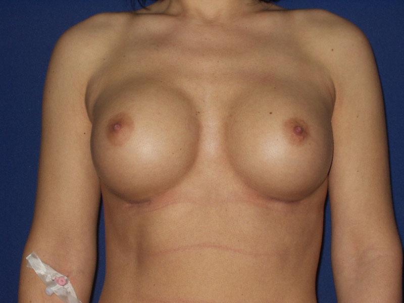 Podizanje grudi - Pacijent 3