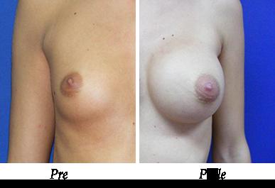 Pre i nakon uvećanja grudi - pacijent 10