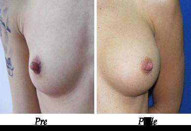 Pre i nakon uvećanja grudi - pacijent 09
