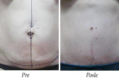 Abdominoplastika - pacijent 4