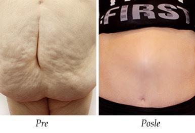 Abdominoplastika - pacijent 6