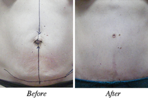 Abdominoplasty - patient 4