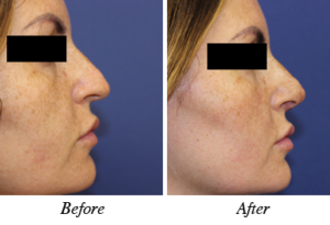 nose correction - patient 4