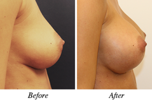 Breast augmentation - patient 16