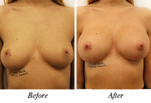 Breast augmentation - patient 15