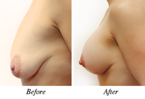 Breast lift, augmentation and correction - patient 17