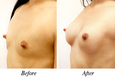 Breast augmentation - Patient 19