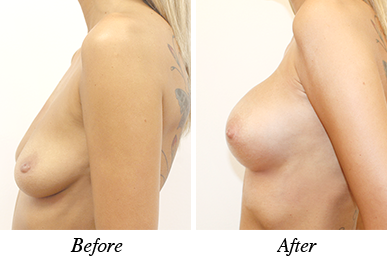 Breast lift&augmentation - Patient 20