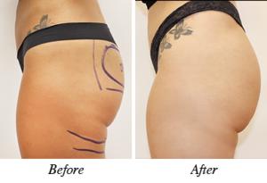 Buttock augmentation- patient 2