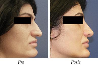 Korekcija nosa - Pacijent 9