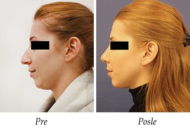 Korekcija nosa - pacijent 10