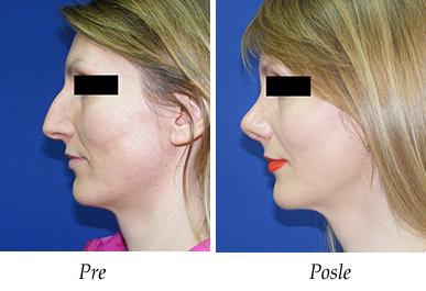 Korekcija nosa - pacijent 11