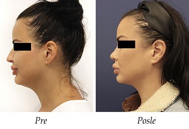 Korekcija nosa - pacijent 12