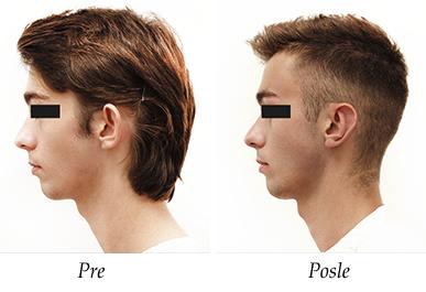 Korekcija usiju pre i posle pacijent 2