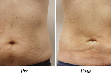 Liposukcija - pre i posle