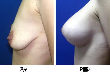 Pre i nakon podizanja i uvećanja grudi - pacijent 11