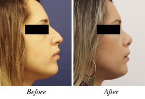 Nose correction - before after patient 7