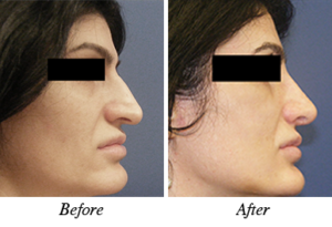 Nose correction - patient 9