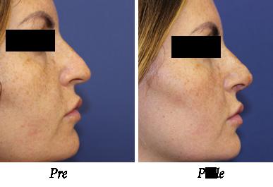 korekcija nosa pacijent 4