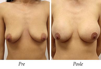 Pacijent 14 - pre i nakon uvećanja grudi
