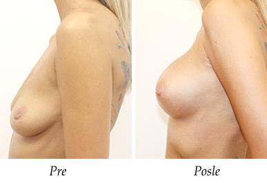 Pacijent 20 - Uvećanje i podizanje grudi