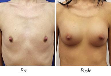 Pacijent 22 - pre i nakon uvećanja grudi