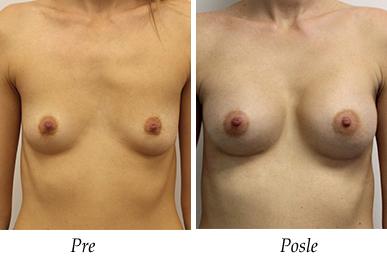 Pacijent 23 - pre i nakon uvećanja grudi