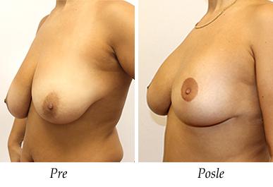 Pacijent 25 - pre i nakon podizanja i uvećanja grudi