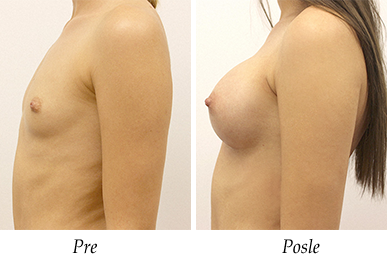 Pacijent 26 - pre i nakon uvećanja grudi