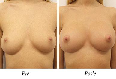 Pacijent 27 - Pre i nakon uvećanja grudi