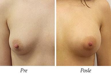 Pacijent 28 - Pre i nakon uvećanja grudi