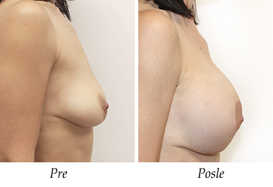 Pacijent 29 - Pre i nakon uvećanja grudi