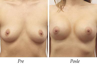 Pacijent 30 - Pre i nakon uvećanja grudi