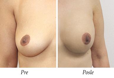 Pacijent 31 - Pre i nakon uvećanja grudi