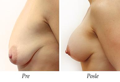 Podizanje i korekcija grudi - pacijent 17