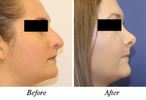 Nose correction before-after patinet 8