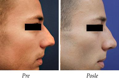 Korekcija nosa - pacijent 15