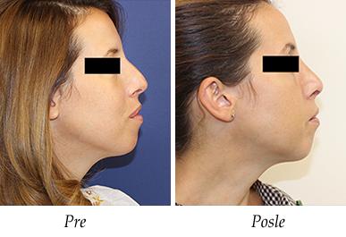korekcija nosa - pre i posle