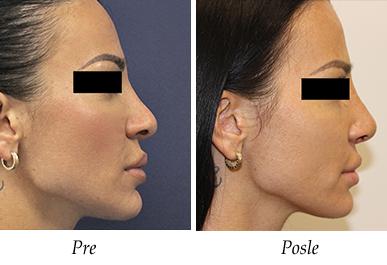 korekcija nosa pre posle
