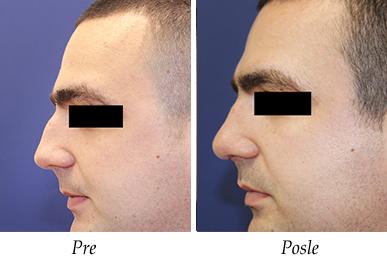 korekcija nosa -pre-posle