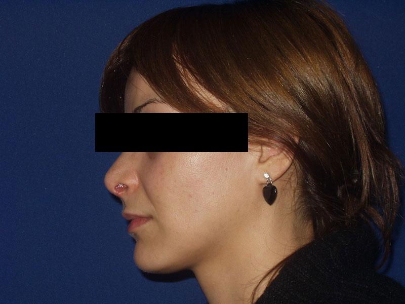 Korekcija nosa - Pacijent 1
