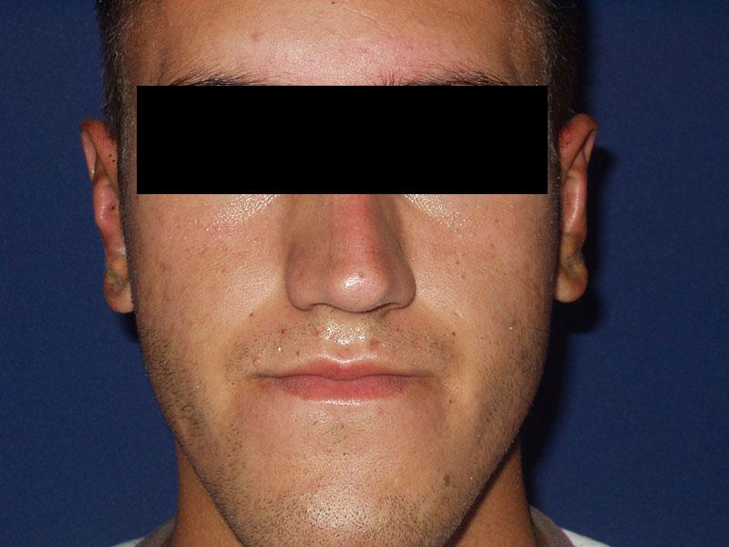 Korekcija ušiju - Pacijent 1