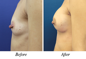 nipple correction and breast augmentation - patient 12