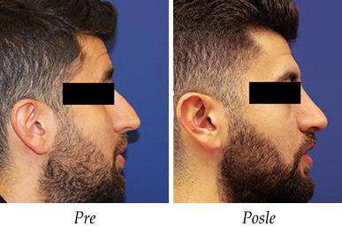 korekcija nosa - pacijent 5