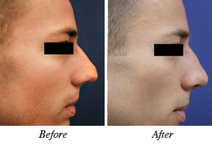 nose correction before after