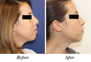 nose correction - before after